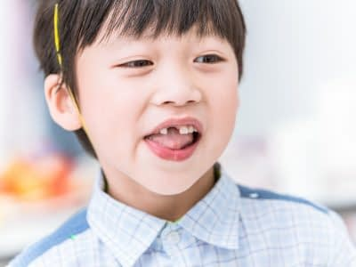 boy lost tooth font. teeth missing in children or dental problem